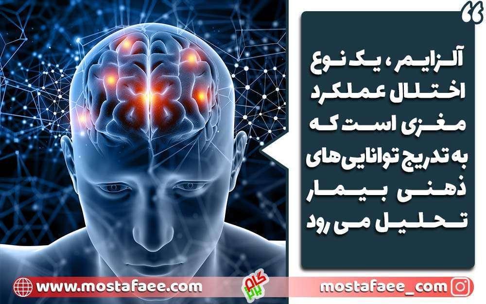 فراموشی یک نوع اختلال عملکرد مغزی است